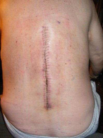SPINAL SCARS