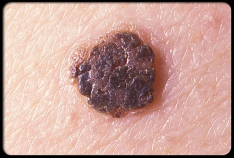 common-adult-skin-problems-s19-photo-of-seborrheic-keratoses